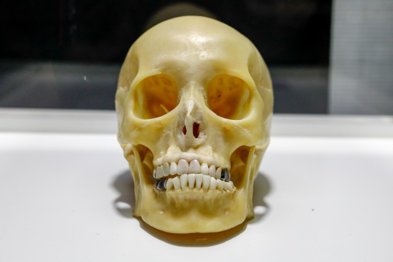 Iguatemi Campinas | Exposição Maravilhas Do Corpo Humano Cranio